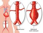 Vitamine k2 aneurysma