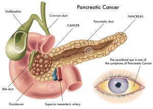 Pancreaskanker